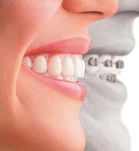 Post image for Услуги профессиональной стоматологической клиники Кавитрон по ортодонтии