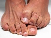креми для ніг від грибка